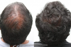 hair-replacement-photo-crown-168457