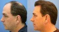 hair-transplantation-250x250